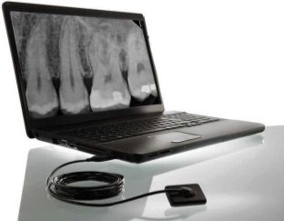 Digital Xrays
